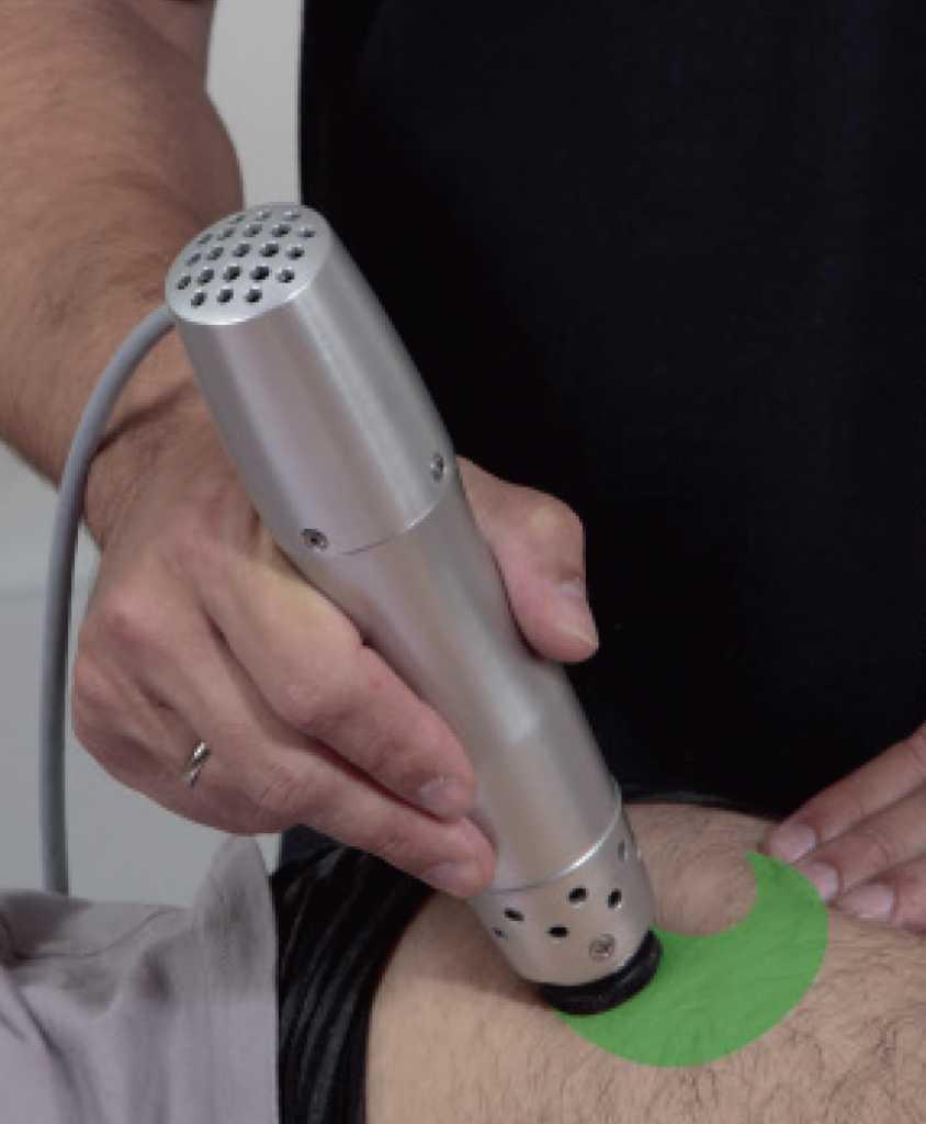 nyálkatömlő gyulladás kezelés - lökéshullám