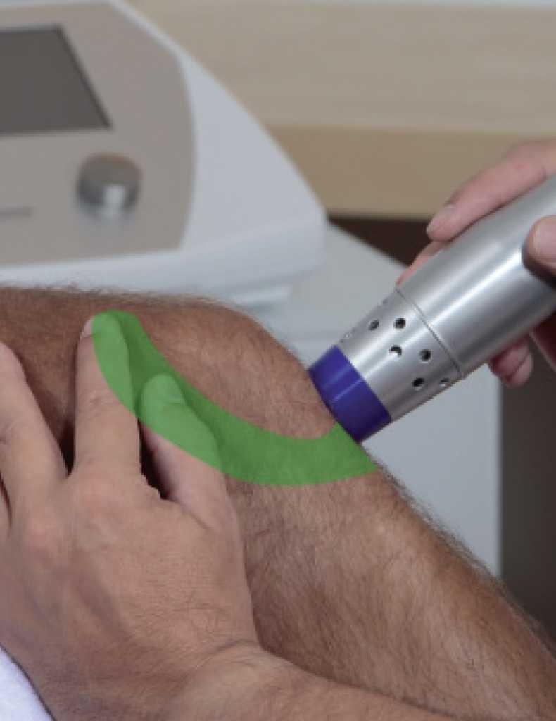 térkalács-szalag fájdalom kezelés - lökéshullám