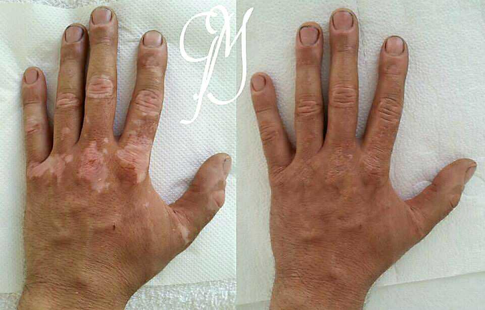 Vitiligo melamin hiány kezelése